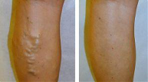 Современные методики лечения варикоза