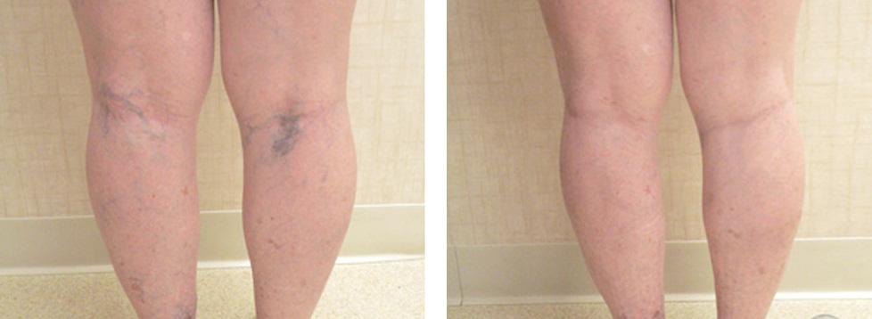 склеротерапия на ногах